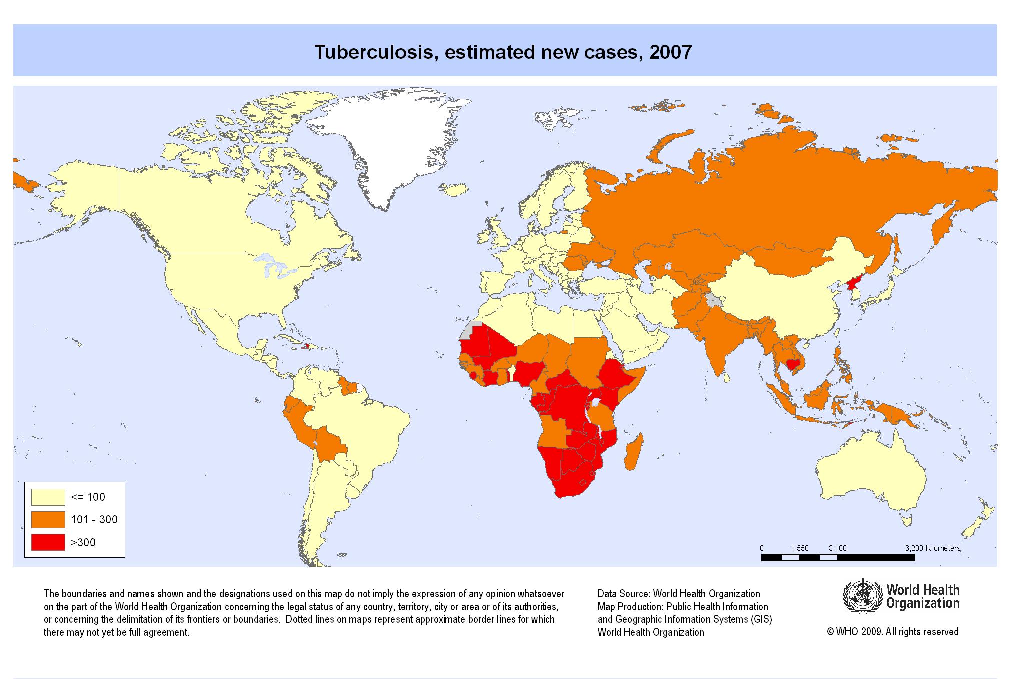 tuberkulose statistikk, symptomer, dødelig sykdom